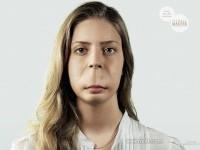 3-creative-advertising-derma-pimple