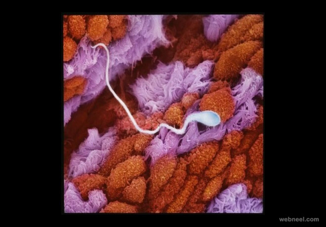 sperm fallopian tube photo