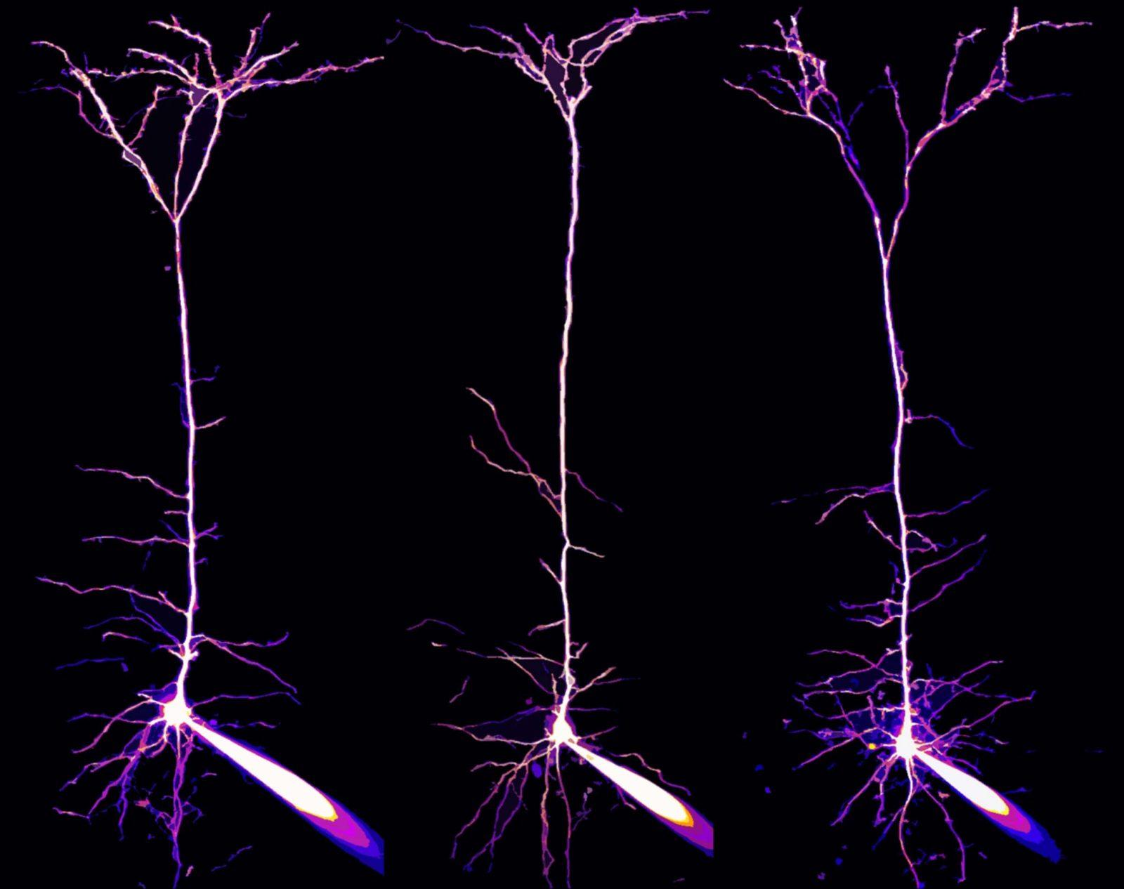 pyramidal neurons photography