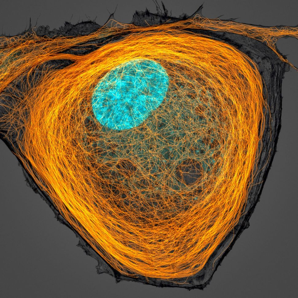 microtubules inside cell photography by jasonkirk